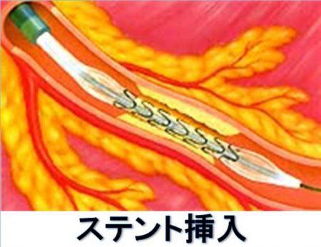 薬剤溶出ステントによる狭心症治療について