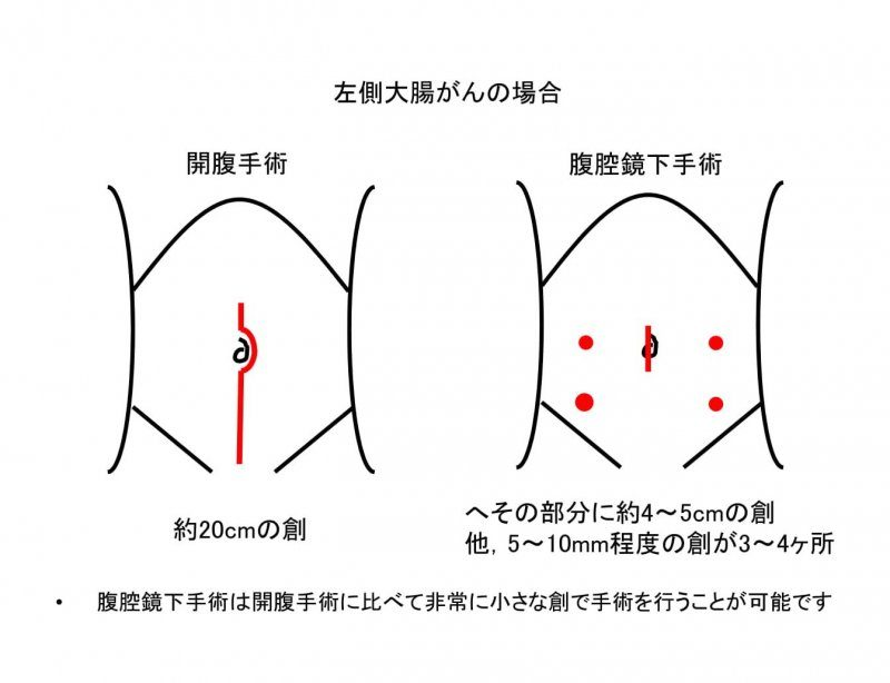 大腸がんに対する腹腔鏡下手術